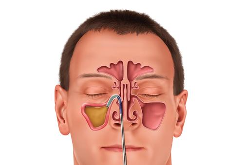 Balloon Sinus Dilatation