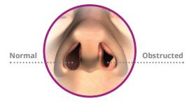 VivAer Michigan for Nasal Obstruction